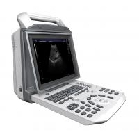 Buy cheap Battery Supported General Imaging Ultrasound Speckle Noise Reduction Technology from wholesalers
