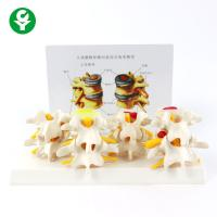 Buy cheap 4 Stages Educational Body Parts Models Pathology Lumbar Vertebrae Spine from wholesalers