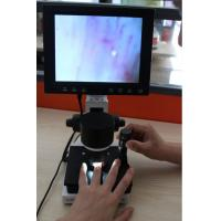 Buy cheap High Definition LCD Microcirculation Checking Microscope Nailfold Video Detection Instrument from wholesalers