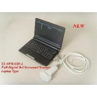 Buy cheap Full Digital Laptop Ultrasound Scanner (TY-6858A) from wholesalers
