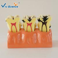 Wholesale Decayed Tooth Orthodontic Study Models 4 Times Caries Disassembling Model from china suppliers
