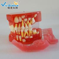 Wholesale Advance PVC Plastic Child Caries Teeth Model Dental Life Size Eco - Friendly from china suppliers