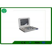 Buy cheap Full Digital Laptop Ultrasound Scanner ,B Mode Ultrasonography With 8 Segments TGC from wholesalers