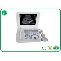 Buy cheap Full Digital B Mode Ultrasonography , Palm Ultrasound Scanner Video Recorder from wholesalers