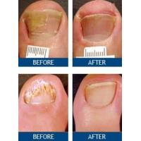 Buy cheap Painless Nail Fungus Laser Machine For Podiatrist Treatment Effective Cure from wholesalers