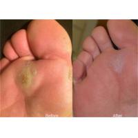 Buy cheap Laser Treatment Equipment For Plantar Callus Removal / Corn And Callus Treatment from wholesalers