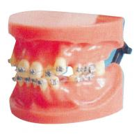 Buy cheap Dislocation Fixed Orthodontic Model For Medical College And Dental Hospital Training from wholesalers