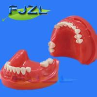 Buy cheap dental model for partial denture restorative from wholesalers
