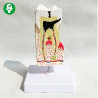Buy cheap Pathology Tooth Decay Model Dental Doctor Caries Lesions Four Times Total from wholesalers