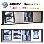 Buy cheap Upgrade LED X-ray Negatoscope Mst-4000IV Four Panels with 7 Level LED Display from wholesalers