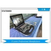 Buy cheap B Display Mode Color Doppler Ultrasound Scanner Convex Array 8 Segments TGC from wholesalers
