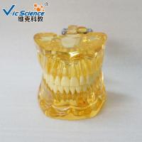 Wholesale Full Mouth Teeth Pathology Model Teeth Models For Education With Half Implant from china suppliers
