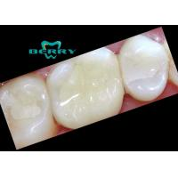 Buy cheap Composite Tooth Veneers Dental Inlays small damage of tooth surface from wholesalers