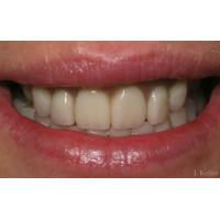 Buy cheap Denture retainer box from wholesalers
