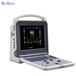 Buy cheap OB&GYN, Cardiac, Vascular, Urology 4D Color Doppler Ultrasound Machine from wholesalers