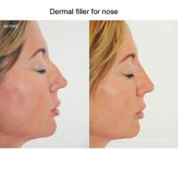 Buy cheap Cheaper price cross-linked liquid gel injectable facial 1ml 2ml dermal filler from wholesalers