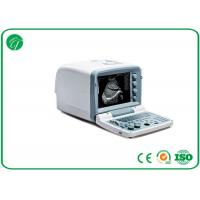 Buy cheap Digital Mobile B Mode Ultrasound Scanner Medical Equipment Disk C With 32MB Capacity from wholesalers