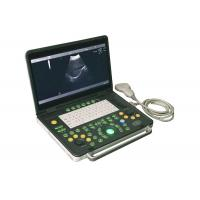 Buy cheap 15 inch Notebook Diagnostic Ultrasonic Device Convex Probe Scans Abdomen Liver Kidney from wholesalers
