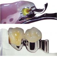 Buy cheap Easy Clean Precision Attachment Partial Denture For Restore Missing Teeth from wholesalers