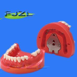 China dental model for partial denture restorative on sale