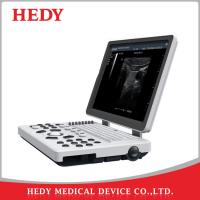 Buy cheap HEDY Portable B/W Ultrasound Scanner Good Imaging Digital Ultrasound from wholesalers