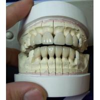 Porcelain Teeth, Porcelain Materials Tooth, Manufactures