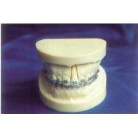 Buy cheap R-Orthodontic ItemDENTAL TOOTH MODEL product