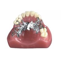 Buy cheap INVISIBLE DENTURE(1) from wholesalers