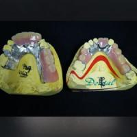 Buy cheap Refinned Partial Framework Removable Denture from wholesalers